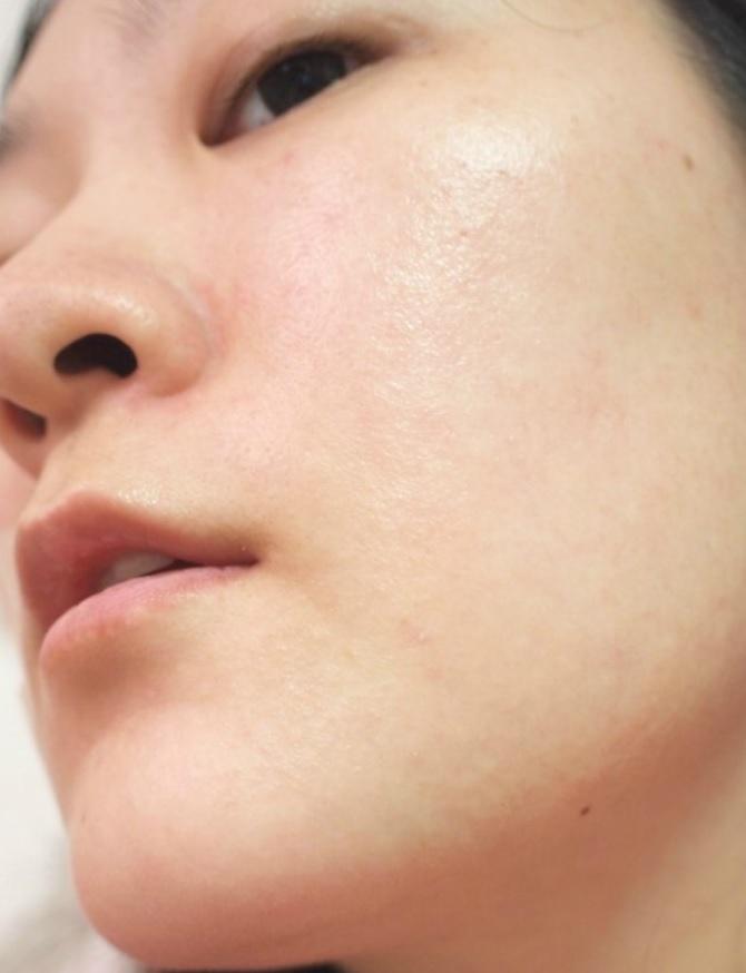 大正製薬のトリニティーラインはシミやシワに効果あるの?口コミが評判のジェルクリームの本当の効果効能とは