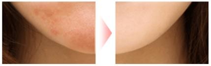 パルクレール美容液の効果は本当?口コミでニキビやニキビ跡が消えると評価されているパルクレールとは!